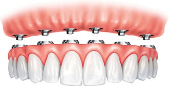 Illustration of full arch supported by implants