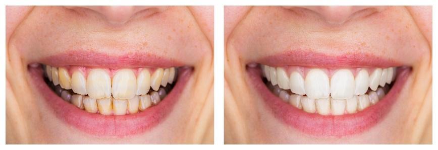 Cosmetic Dental Treatments for La Jolla, Del Mar, & Pacific Beach
