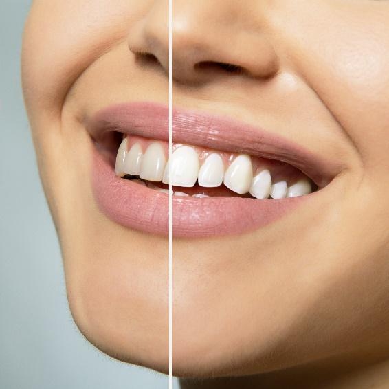 Cosmetic Dentistry for La Jolla, Del Mar, & Pacific Beach