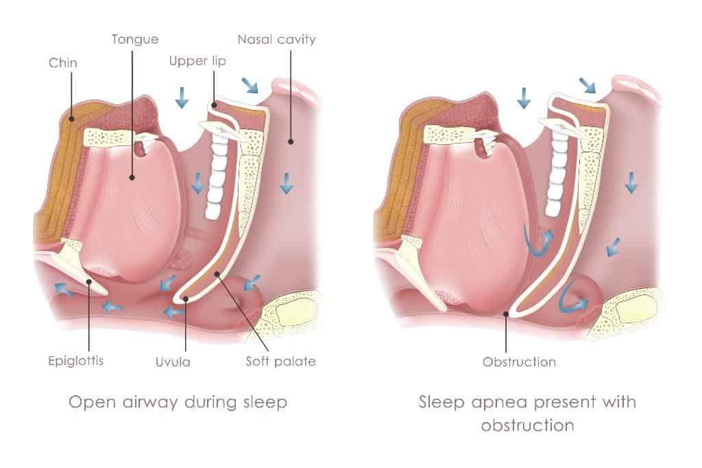 Obstructive Sleep Apnea in La Jolla, Del Mar, & Pacific Beach
