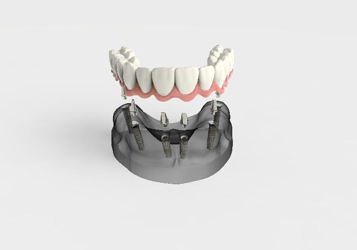 Implant Supported Dentures for La Jolla, Del Mar, & Pacific Beach