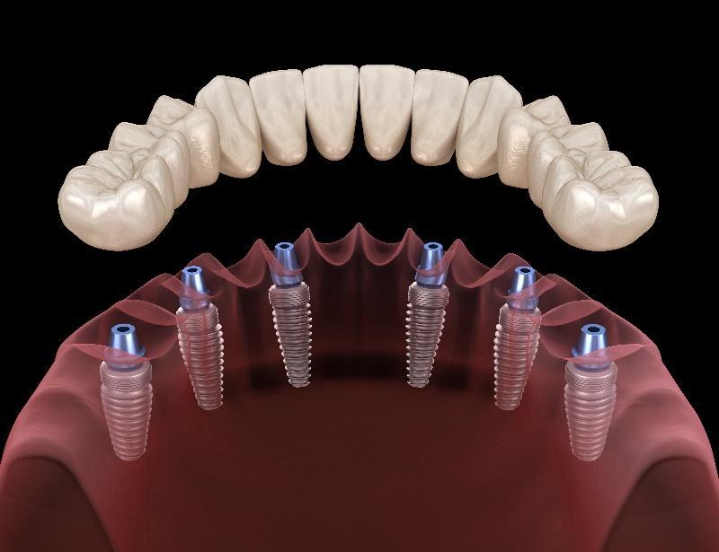 Dental Implants with Crowns or Bridges in La Jolla