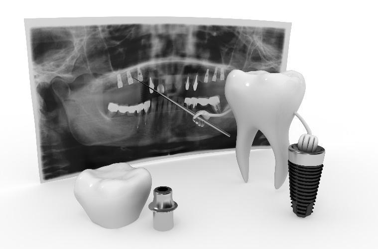 Restorative Dentists for La Jolla & San Diego