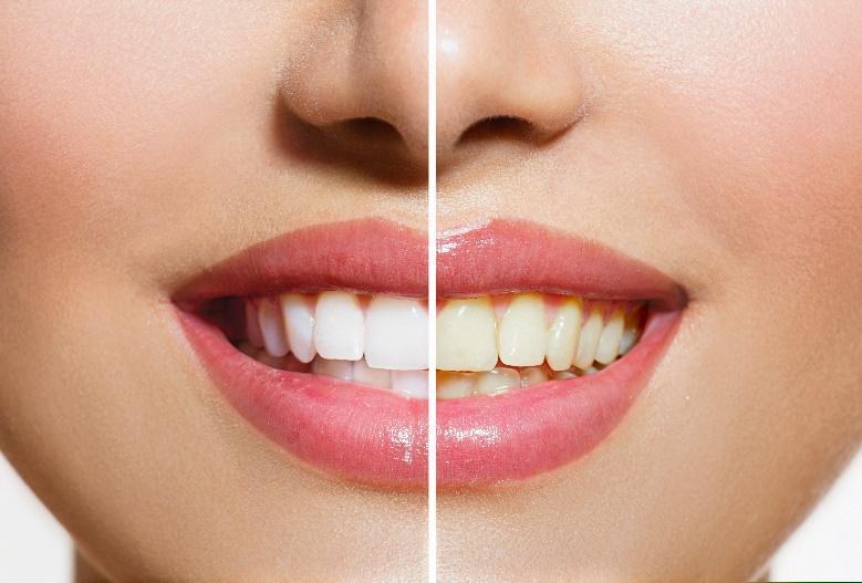 Teeth Whitening for La Jolla, Del Mar, & Pacific Beach