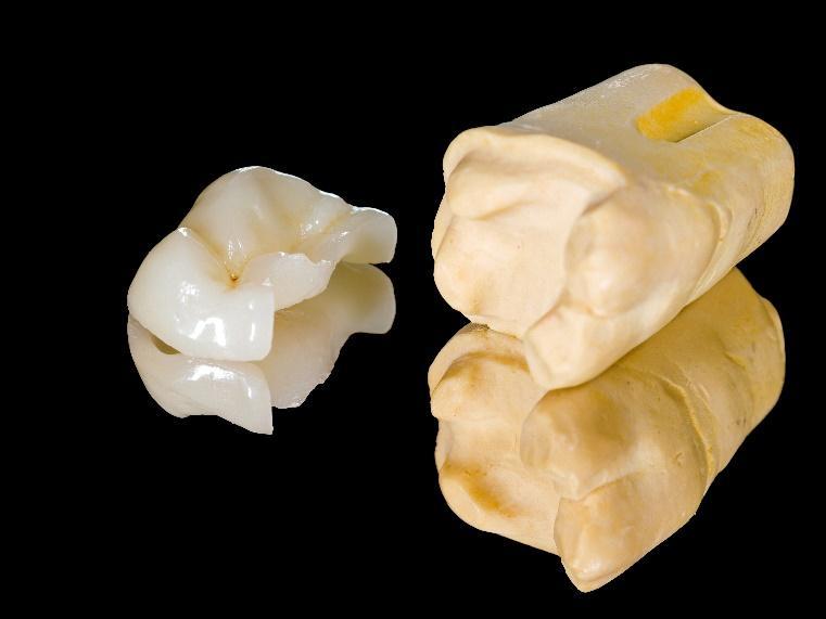 Dental Inlays & Onlays for San Diego