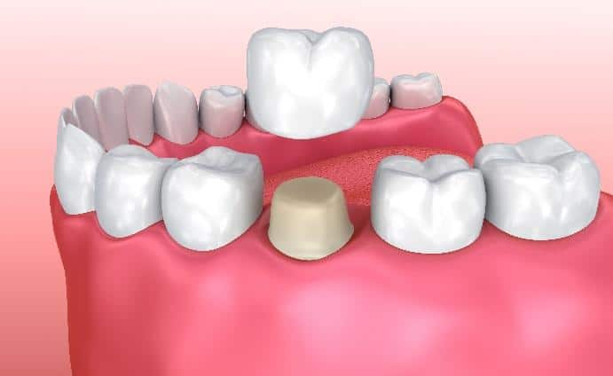 Tooth Crowns for San Diego