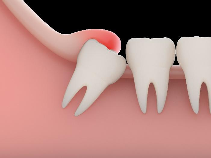 Tooth Extraction for La Jolla, Del Mar, & Pacific Beach