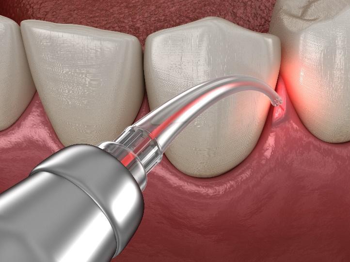 Gum Disease Treatment for La Jolla, Del Mar, & Pacific Beach