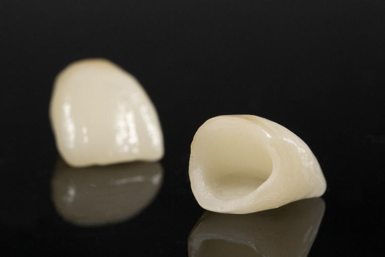 Dental Fillings in La Jolla