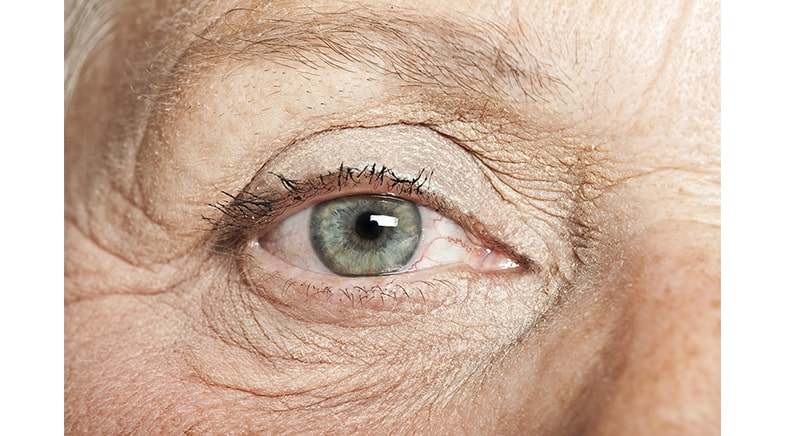 Long-Term Physical Activity and Risk of Age-Related Cataract