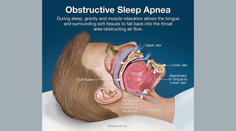 Consequences for Obstructive Sleep Apnea Screening and Treatment