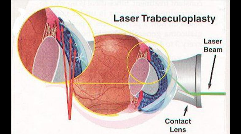 Ten Things I Want My Patients to Know About Laser Trabeculoplasty