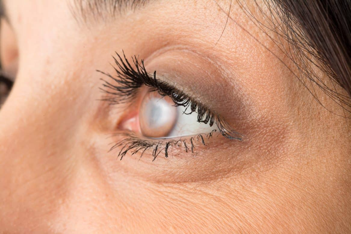Common Questions about Cataracts