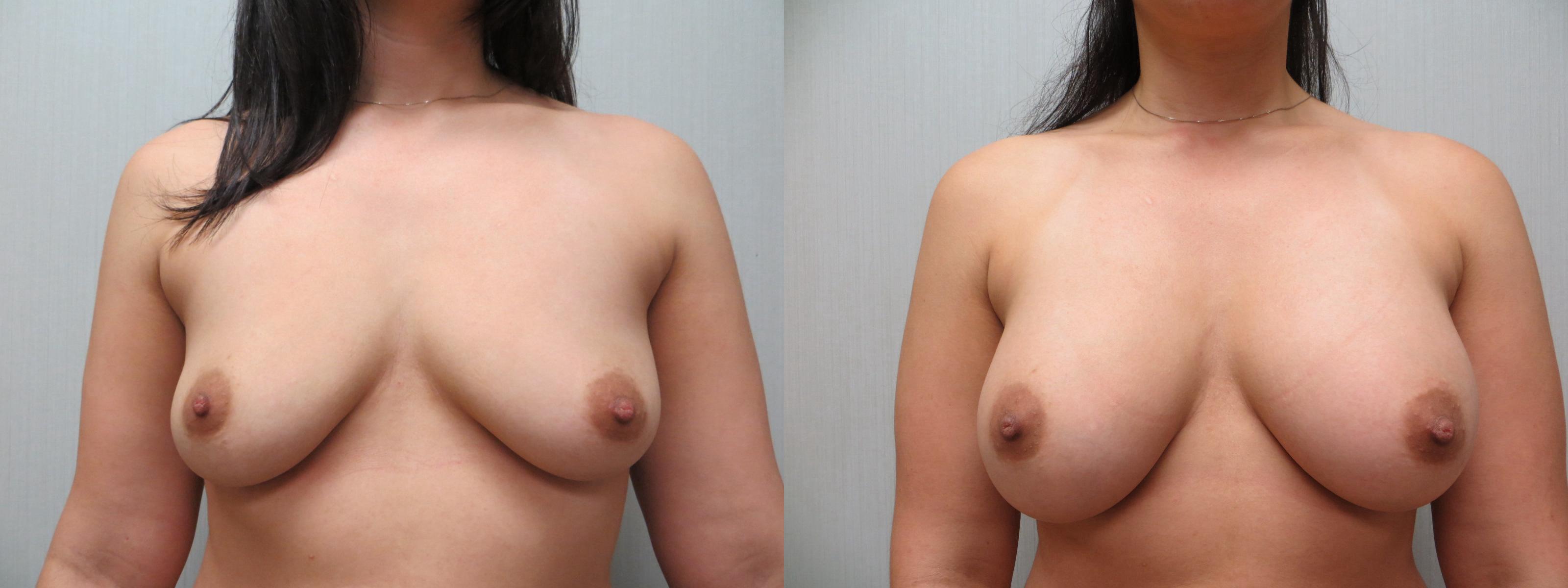 Patient #61 Breast Augmentation